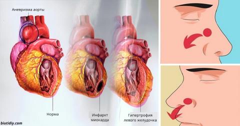 9 опасных симптомов высокого…