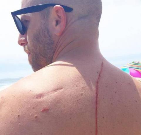 Акула напала на этого мужчин…