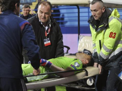 Спортивный врач: Акинфеев получил ожог, сравнимый с солнечным