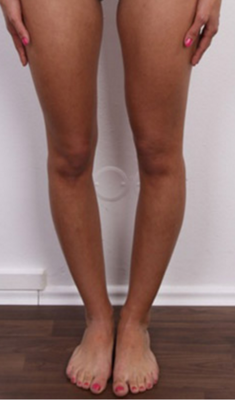 Фото некрасивых женских ног