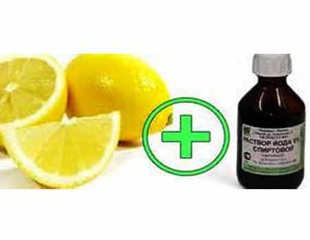 Йод с лимоном от остеохондроза