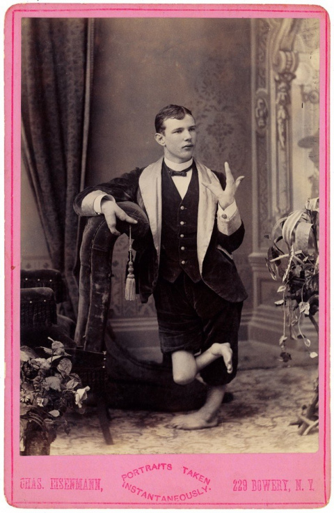 Циркачи из прошлого: уродливые и удивительные