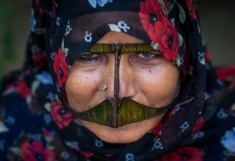 Зачем иранские женщины носят маски на лице