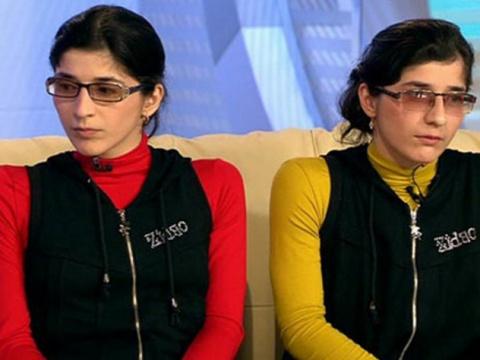 Как сложилась жизнь сиамской близняшки Гиты после смерти Зиты