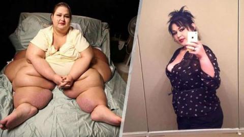 Уму непостижимо — когда-то эта жительница Техаса весила 550 кг