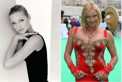 Знаменитые женщины, которые сами разрушили свою былую красоту