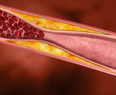 Как понизить холестерин без …