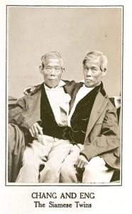Сиамские близнецы: вместе на…