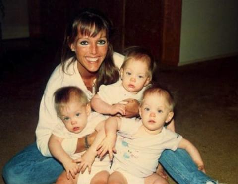 В младенчестве эти девочки получили тяжелые ожоги. Спустя 27 лет от них нельзя оторвать глаз!