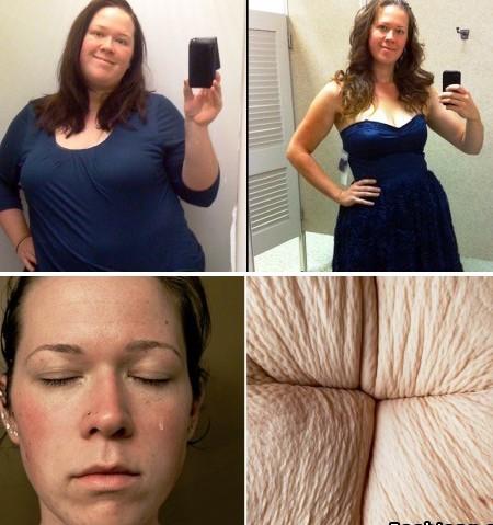 То, что обычно скрывают – девушка показала нелицеприятную сторону экстремального похудения