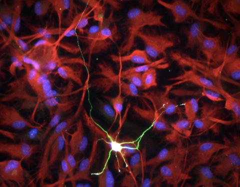 Аутизм: когда нейроны с астроцитами «ссорятся»
