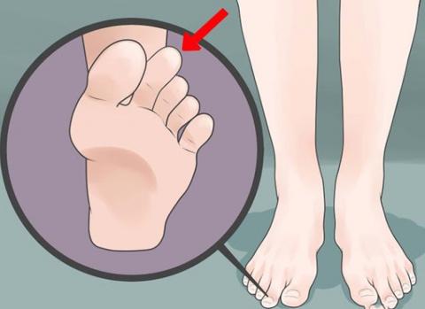 О чем говорят ваши ноги: палец Мортона, характер и генетика.