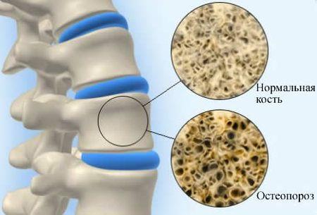 Как приготовить скорлупу яиц для лечения остеопороза -