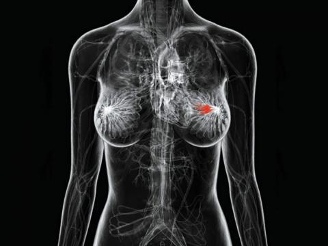 Основные причины рака груди,…
