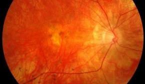 Новый тест на глаукому позво…
