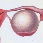 Киста яичника. Причины, симптомы, лечение кисты яичника народными средствами