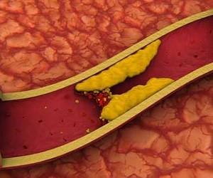 Как нормализовать уровень холестерина в крови: 6 натуральных средств