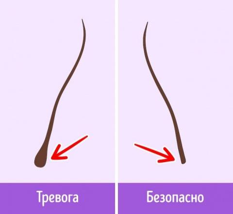 Почему выпадают волосы и как…