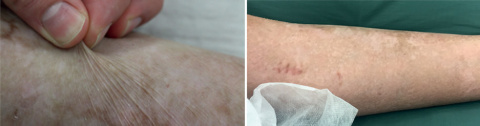 Немецкие врачи вырастили трансгенную кожу для 80% тела ребёнка