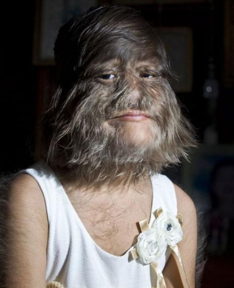 Самая волосатая девочка в мире побрила лицо и вышла замуж!