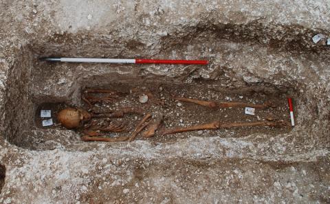 Древний скелет рассказал об истории проказы