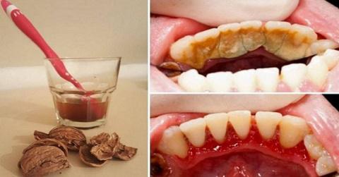 Как избавиться от зубного ка…