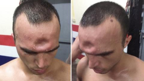 Тайский боксер получил необы…