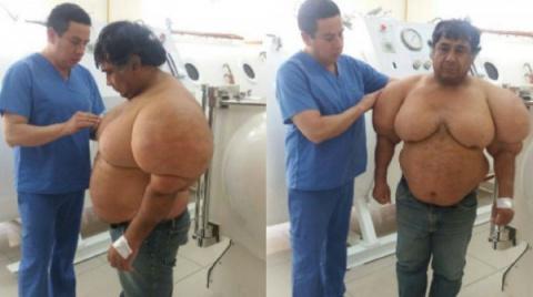 Водолаз показал, что случилось с его телом из-за декомпрессионной болезни