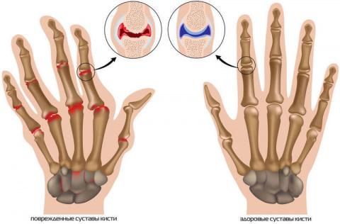 Упражнения для лечения артроза пальцев рук