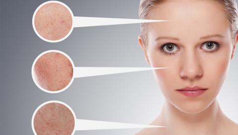 Как укрепить сосуды на лице?…