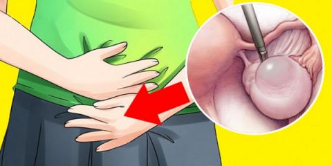 Ранние признаки кист яичнико…