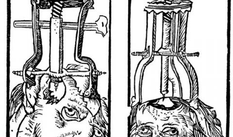 15 жестоких фактов о лоботомии