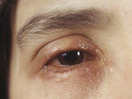 Мешки под глазами – откуда берутся и как их убрать
