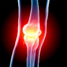Остеоартрозы: современные подходы в лечении