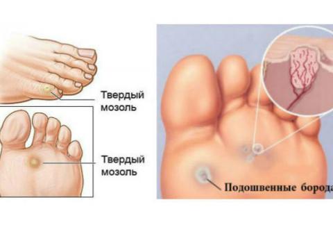 Мозоли и бородавки на ногах:…