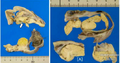 Опухоль отрастила себе подобие человеческой головы с миниатюрным мозгом