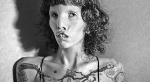 Кейтин Стиклс, модель с синд…