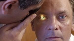 Имплантат сетчатки глаза мож…