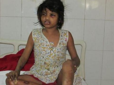 """В Индии найдена одичавшая девочка """"Маугли"""", которая жила среди обезьян"""