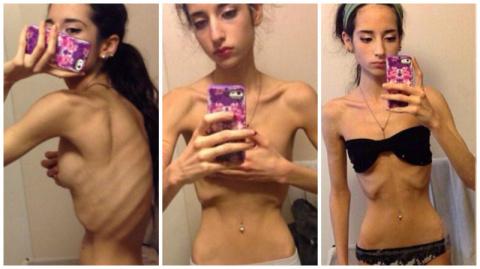 Девушки, не доводите себя до анорексии!