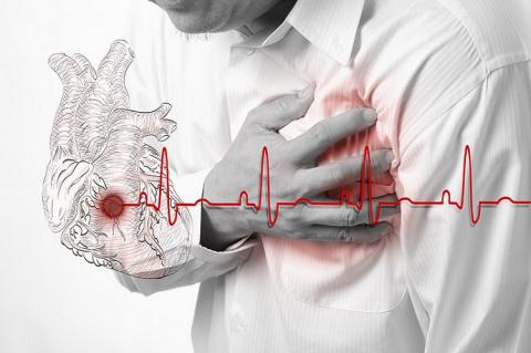 Как пережить сердечный прист…