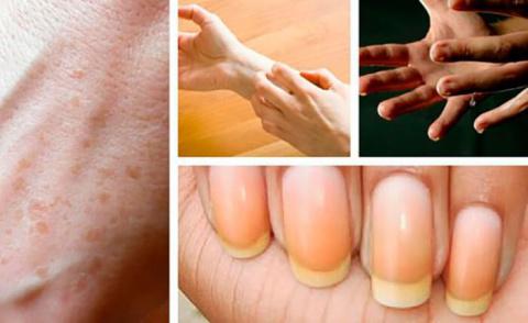 9 интересных вещей, которые могут сказать о здоровье ваши руки
