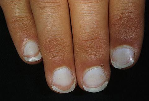 Что состояние ваших ногтей говорит о вашем здоровье