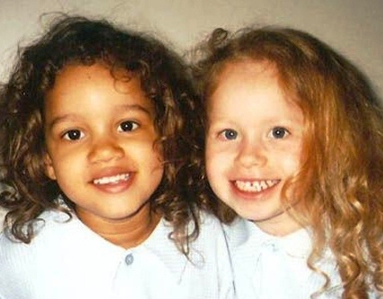 Эти сестры-близнецы родились…