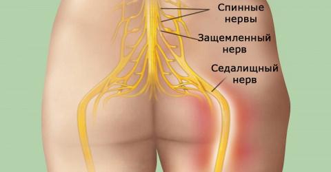 Попрощайся с болью в спине! Это натуральное средство гарантирует успех!
