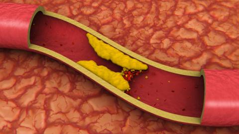 Холестерин. 27 способов сниз…