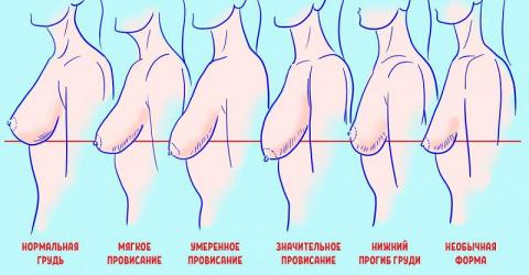 Провисание женской груди: вс…