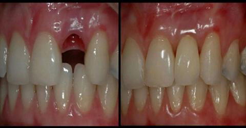 Вырастить новые зубы за 9 недель: процедура, которая возможна в любом возрасте