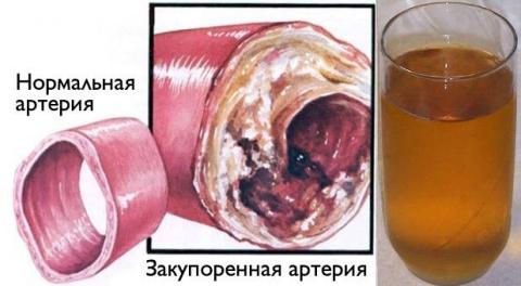 Очистите кровеносные сосуды …
