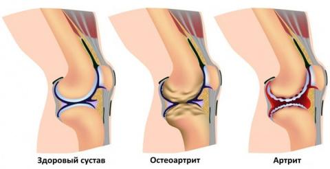 Эти 4 натуральные средства существенно облегчат боль при остеоартрите